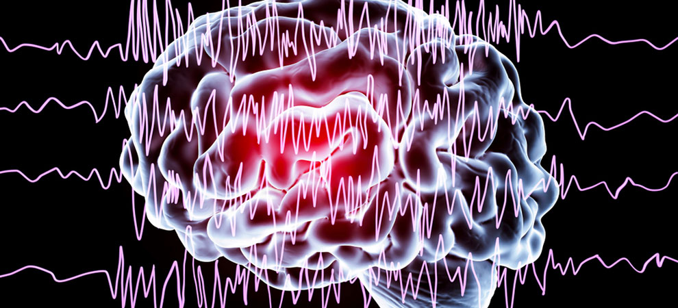 Epilepsy Symptoms - A Guide to the Different Types of Seizures